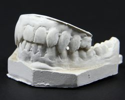 Interview With The Vampire: The Vampire Chronicles Lestats (Tom Cruise) Master Teeth Plaster Cast